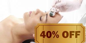 ENCERRADO: Microagulhamento facial e corporal com 40% de desconto em Artur Nogueira