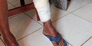 Paciente de Artur Nogueira enfrenta dificuldades para amputar perna