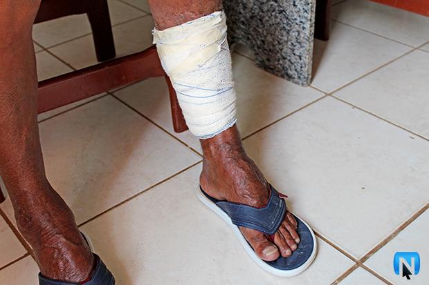 c9abd5249 Depois de receber atendimentos médicos no município onde reside, ele também  buscou por tratamento no Hospital da Unicamp, em Campinas (SP).